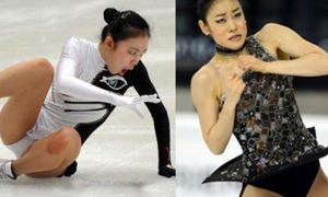 Kim Yuna nhăn nhó siêu hài trên sân băng