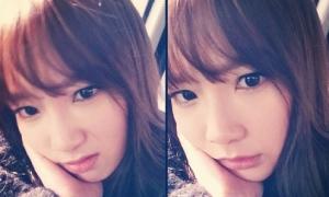Soi sao: Tae Yeon méo mặt vì mọc răng khôn