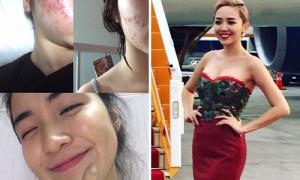 Sao Việt 18/6: Hòa Minzy hết sạch mụn chi chít, Tóc Tiên lộng lẫy ra sân bay