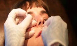Quy trình bấm khuyên mũi