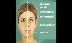 4 thực phẩm là 'thủ phạm' khiến da mặt bạn xấu đi