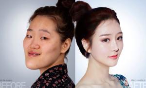 Đằng sau vẻ đẹp lung linh của gái Hàn là nỗi ám ảnh về phẫu thuật thẩm mỹ