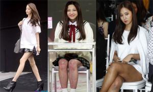 Những khoảnh khắc lộ chân xấu của 10 mỹ nữ Kpop