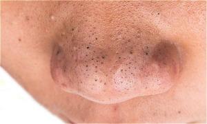 Làm sao loại bỏ mụn đầu đen ở mũi?