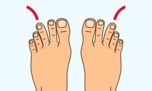 Trắc nghiệm: Dự đoán mức độ giàu có của bạn qua tướng bàn chân