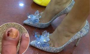 H'Hen Niê cố đi giày gót nhọn 5.000 USD mặc ngón chân mưng mủ