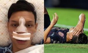 Cầu thủ đấm Đình Trọng bị gãy mũi sau cú va chạm mạnh