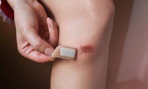 Cách chăm sóc, ngừa sẹo khi da bị trầy xước