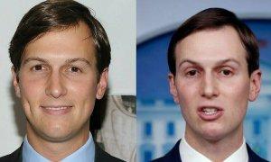 Gương mặt 'trông như phẫu thuật hỏng' của con rể Trump