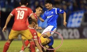 Va chạm kinh hoàng, cầu thủ Quảng Ninh gãy chân