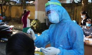 Ca nhiễm nCoV thứ 22 tử vong