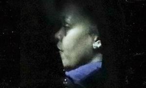 Khuôn mặt tím bầm của Rihanna khiến fan lo lắng