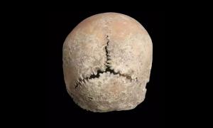 Hộp sọ cổ đại tiết lộ hình phạt cắt môi, mũi thời trung cổ