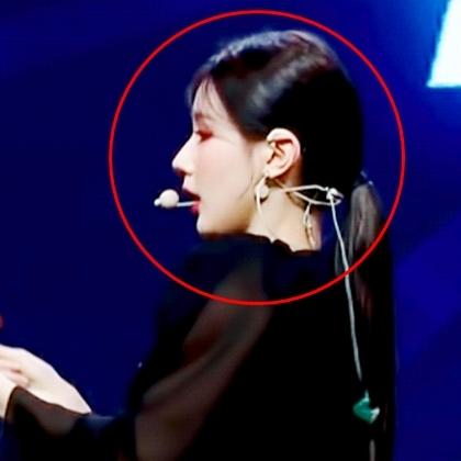 Mũi của Mi Yeon (G)I-DLE không thể tạo nên bằng phẫu thuật thẩm mỹ